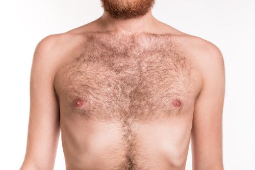 胸毛のコンプレックスを解消したい